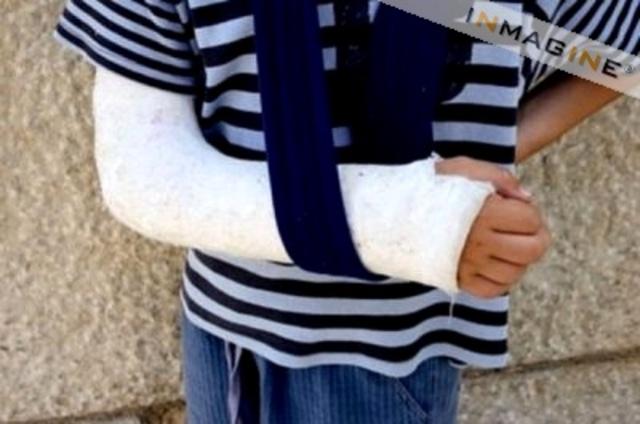 Broke my Arm