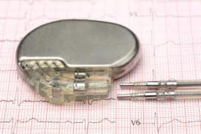 First Pacemaker is Created