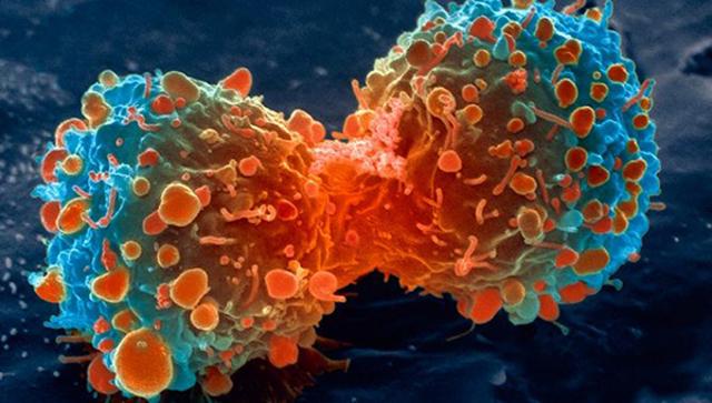 Virus que causan cáncer
