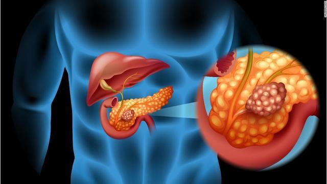 Relación de la diabetes con el páncreas