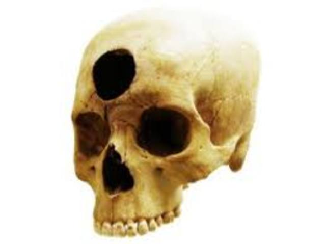 Trepanación de cráneos para liberar espíritus malignos