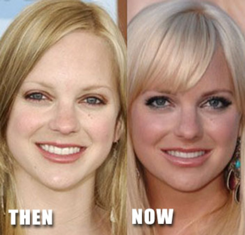 Janey gets plastic surgery