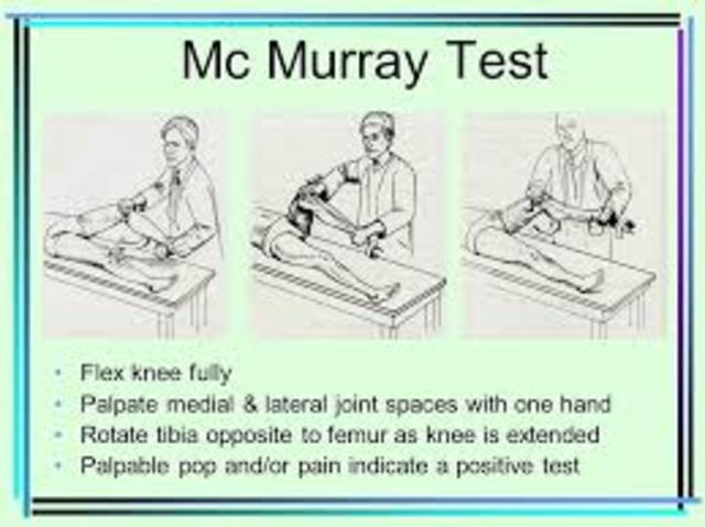Test de Murray