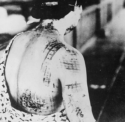 Les blessures de radiation.