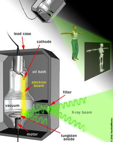 Comment le machine à rayon-X fonctionne!