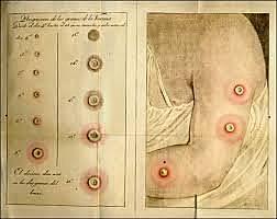 Inoculacion de Viruela