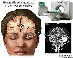 La Neuroimagenología
