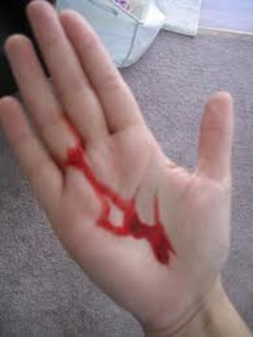 When I had a cut in my hand