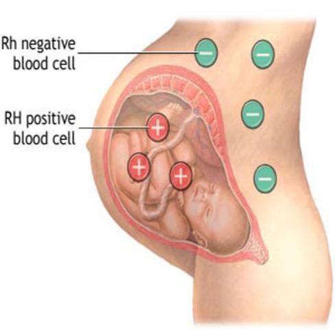 Prevention of maternal Rh sensitization by anti-Rh antibody