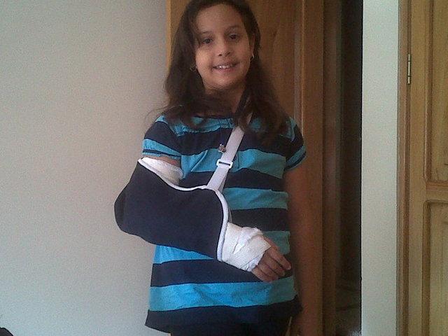 I broke my elbow.