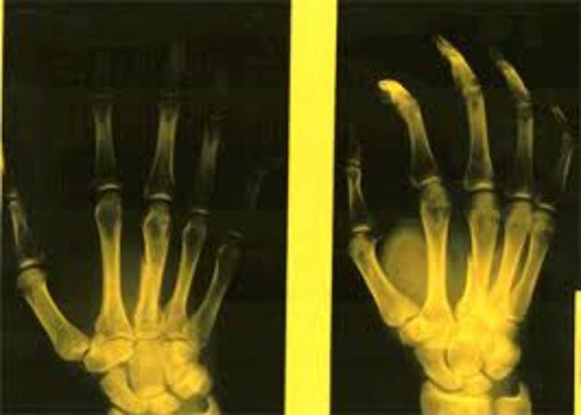 I BROKE MY HAND