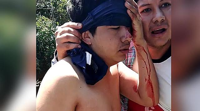 Al menos cinco heridos tras enfrentamientos en el municipio El Torno en Santa Cruz