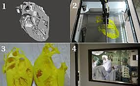 Impresión 3D en cirugía