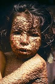 Smallpox Hits