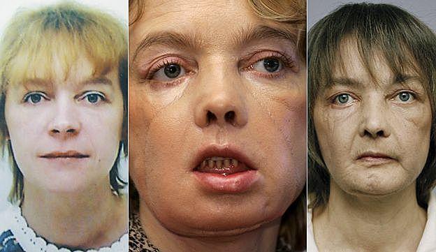 Primer trasplante parcial de un rostro