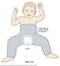 Displasia de cadera Uso de yeso