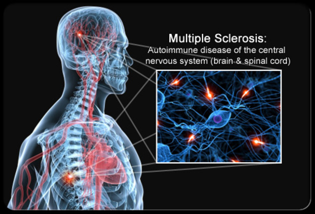 Psychosocial Event: Husband diagnosed with Multiple Sclerosis