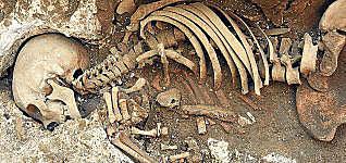 Métodos y fuentes usados en la paleopatología