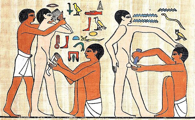 Circuncisión a varones