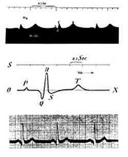 Primer electrocardiógrafo