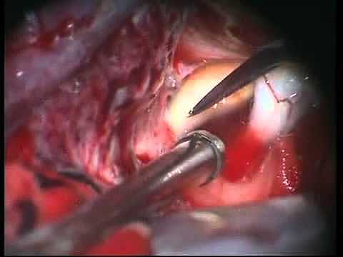 Primera cirugía de un aneurisma
