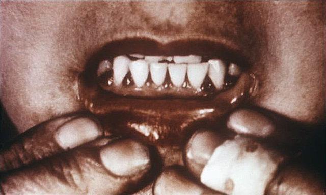 Lind inició su experimento con pacientes de escorbuto, encontrando como remedio los cítricos.