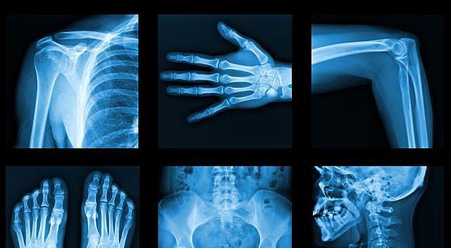 Wilhelm Roentgen dio a conocer un descubrimiento: los rayos X.