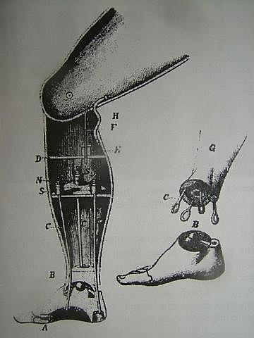 primera prótesis por debajo de la rodilla.