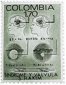 valvula para el tratamiento de la hidrocefalia