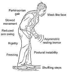 Parkinson y la parálisis agitante