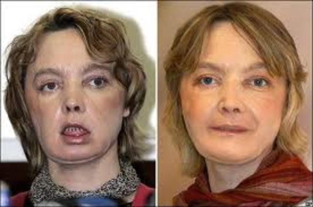 The first partial human face transplant