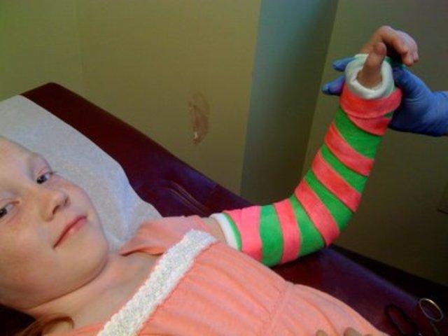 When i broke my arm.