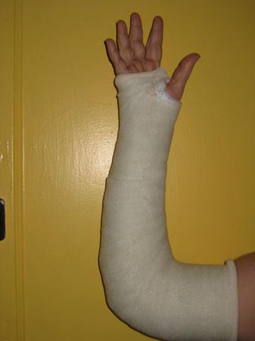 Broke Sarah's arm in cheerleading