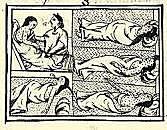 Pandemia de viruela