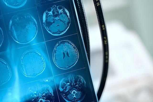 Avances que permitieron visualizar la actividad cerebral