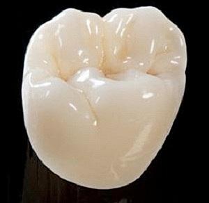 Primer diente de porcelana