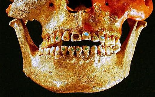 Comienzo de amalgama dental
