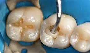 Ionómero de vidrio en odontología