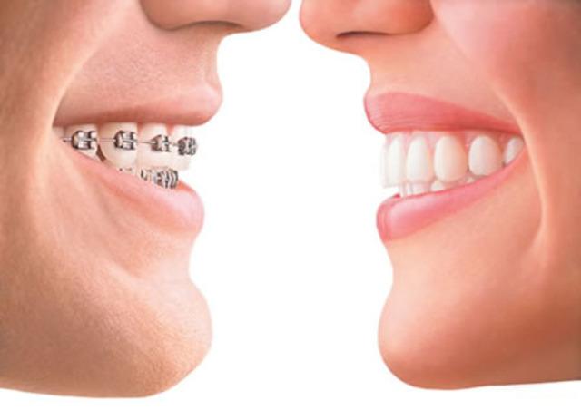 Perfect teeth???