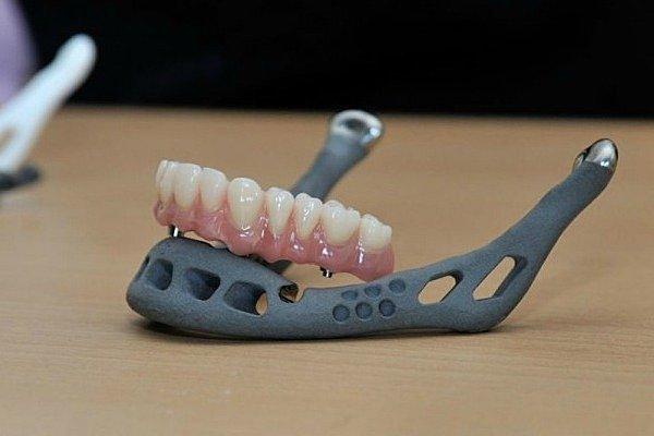 Trasplante de mandíbula impresa