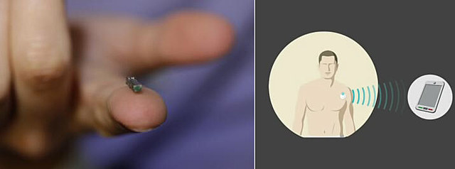 Wireless, implantable devices that monitor health conditions in real time.
