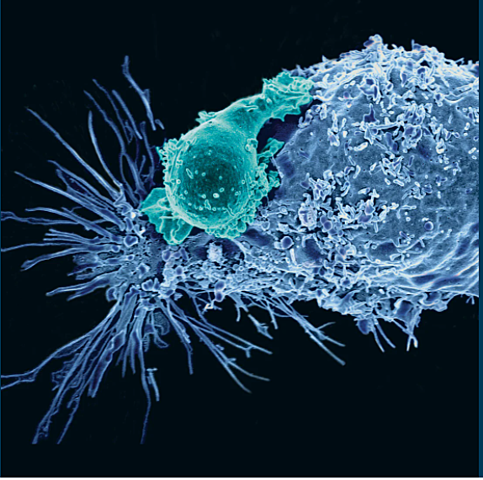 The beginning of CAR T cell therapy
