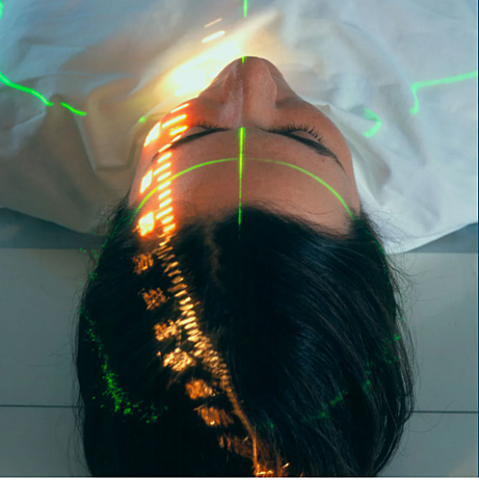 Stereotactic radiosurgery technique is developed