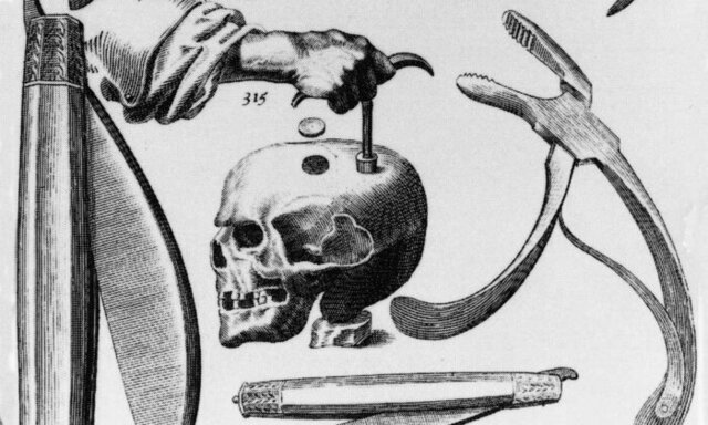 5000 B.C.E. Trephined Skulls