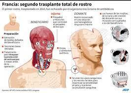 Transplant de cara