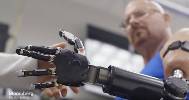 Primera prótesis robótica
