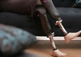 Membres ortopèdics