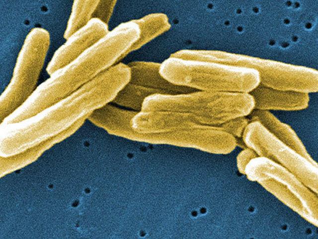 Открытие возбудителя туберкулеза.