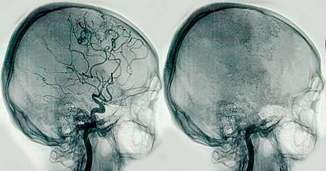 origen de la angiografia