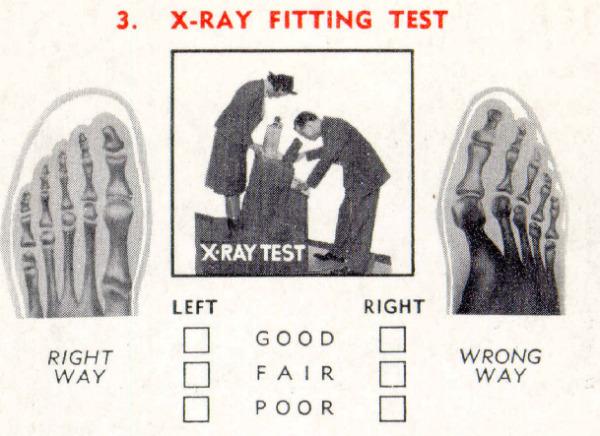 los rayos x para comprobar la horma del pie